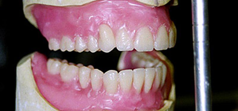 Пошаговая техника постановки зубов в полном съемном протезе по-американски
